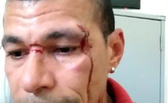 Radialista denuncia agressão por segurança do prefeito