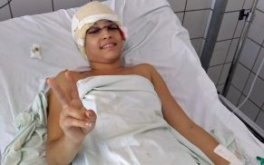 Jovem que teve couro cabeludo arrancado em kart é transferida do Recife para SP